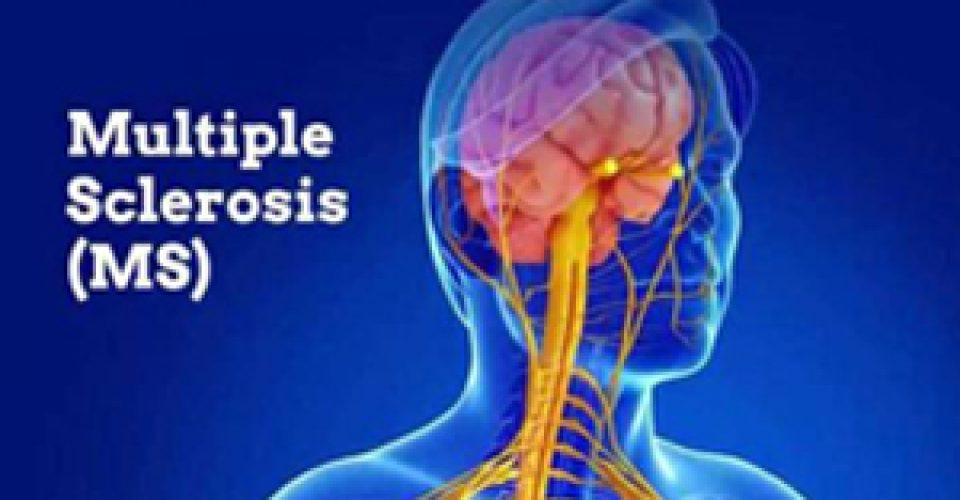 بیماری ام اس چیست و چه علائمی دارد؟